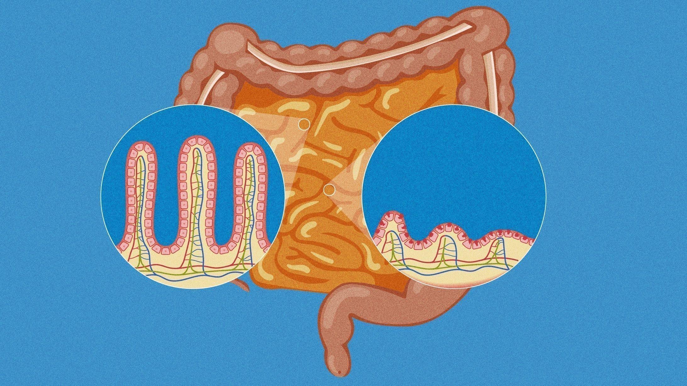 Illustration von gesunden und kranken Darmzotten.