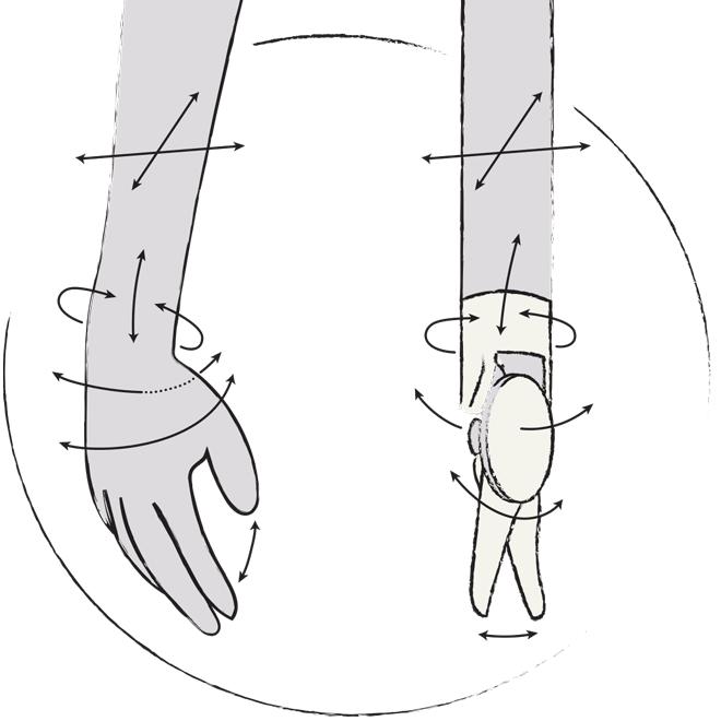 Die Instrumente des Da Vinci sind ruhiger als eine menschliche Hand.