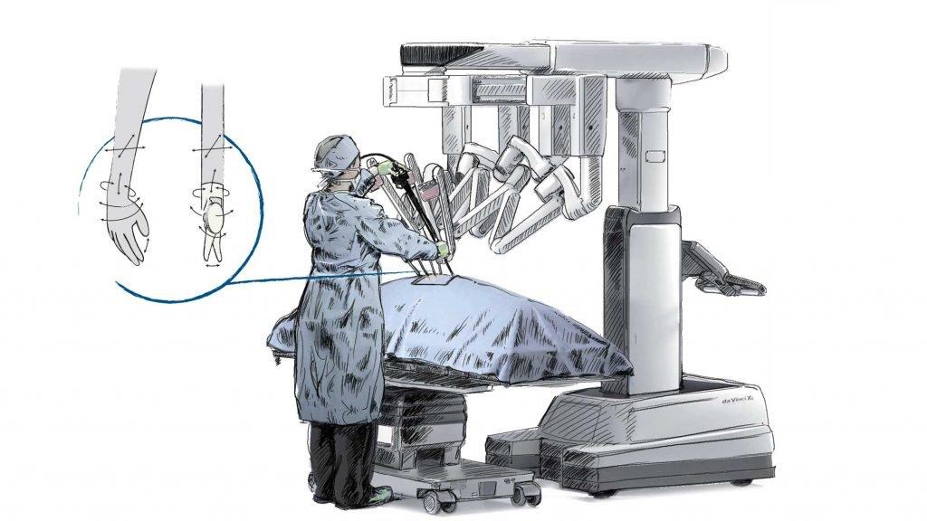 Während der Operation mit dem Da Vinci steht immer ein Arzt zur Überwachung beim Patientenwagen.
