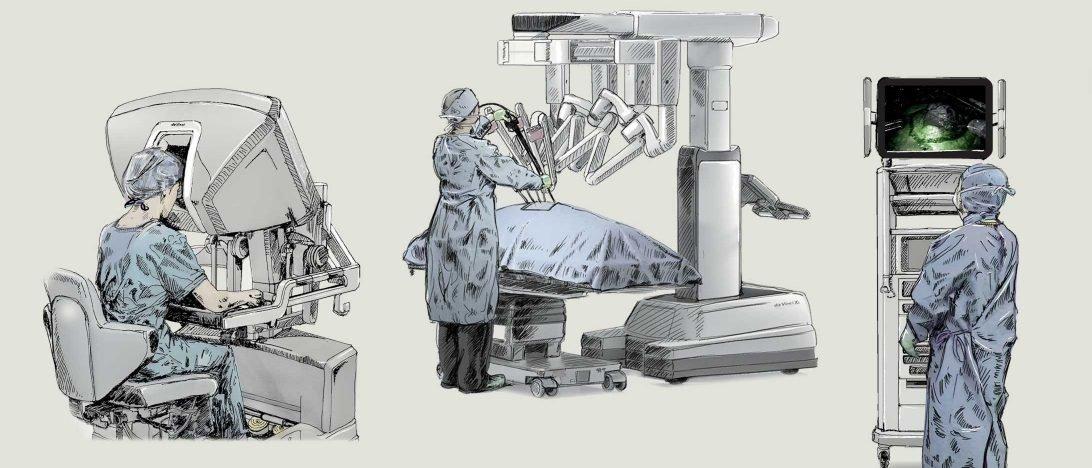 Der Da-Vinci-Operationsroboter beinhaltet eine Chirurgenkonsole, einen Patientenwagen und einen Videowagen.