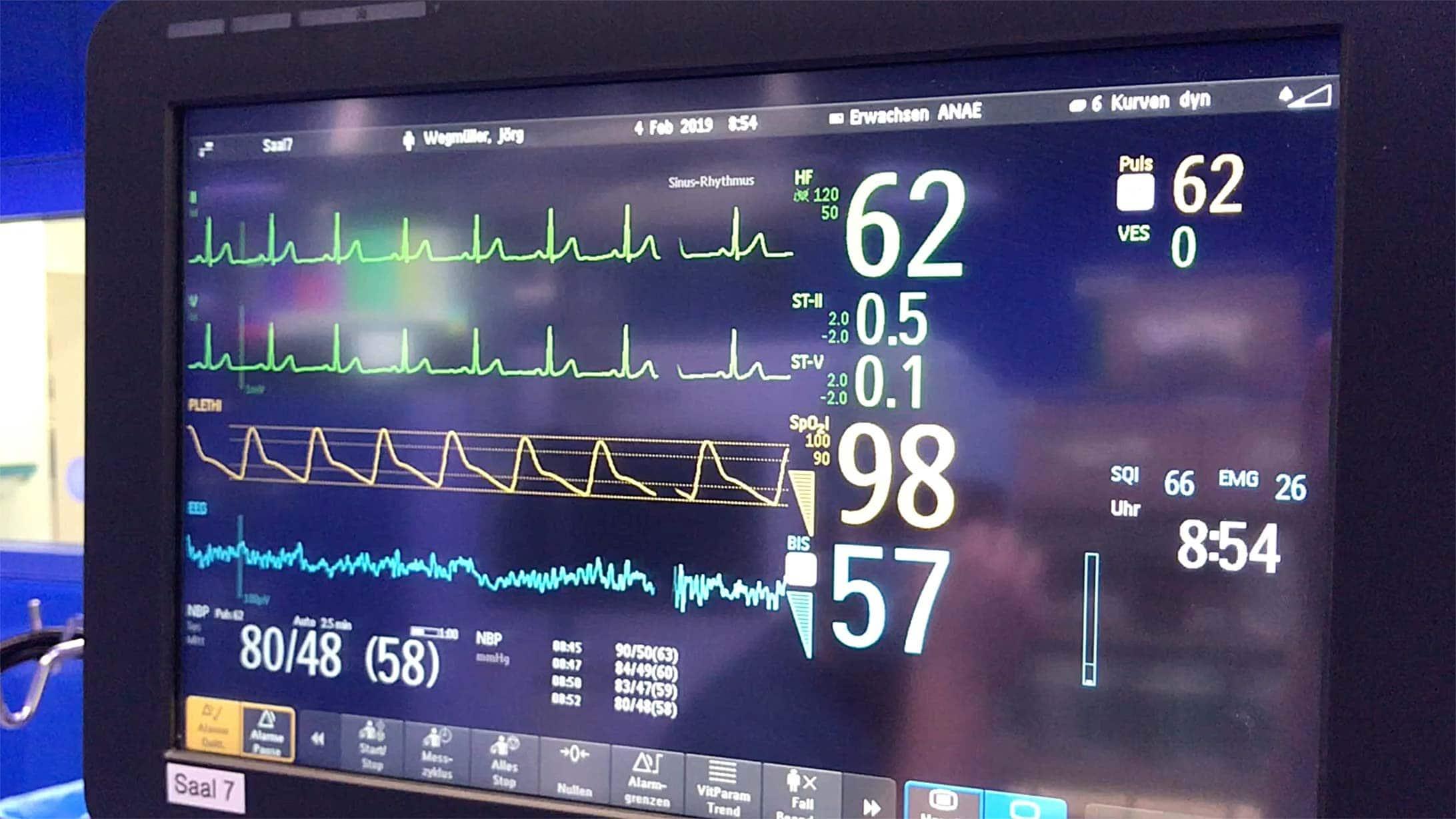 Hernien-OP: Bild eines Monitors