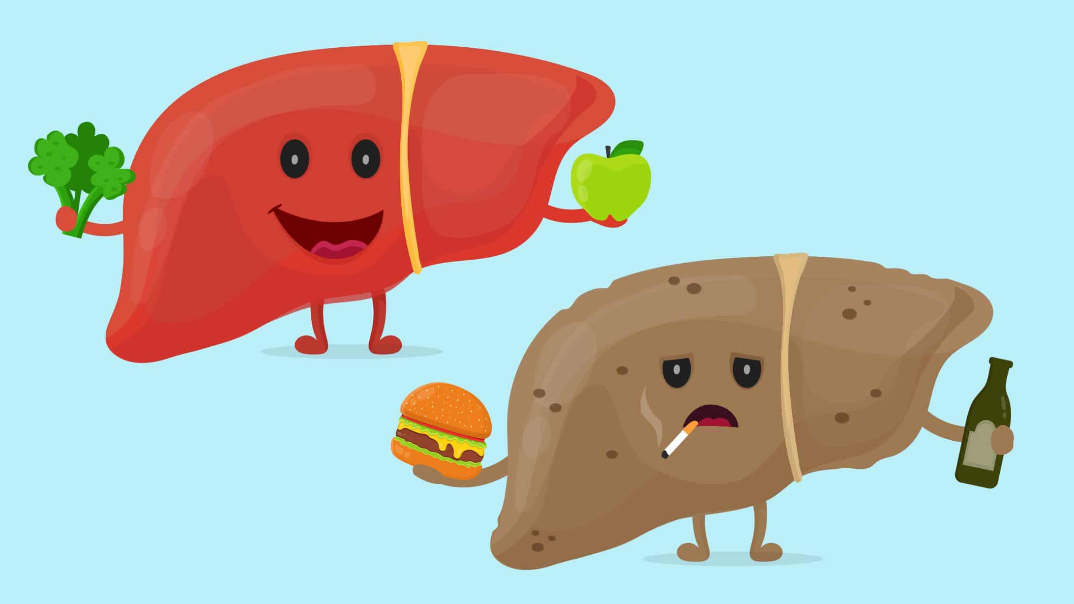Illustrationen von gesunder Leber und Fettleber