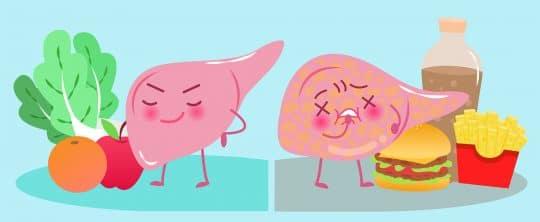 Fettleber: Illustration einer gesunden und einer kranken Leber