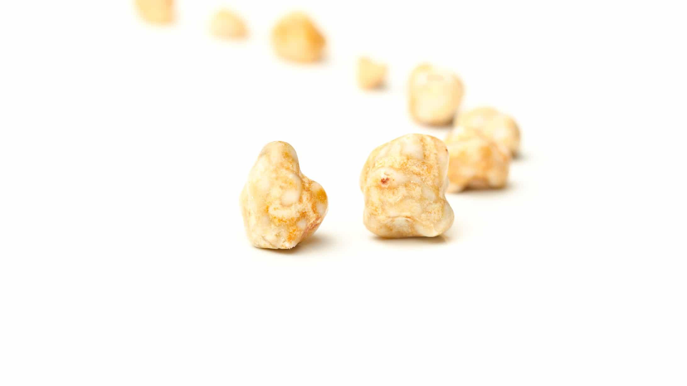 Abbildung von hintereinandergereihten Gallensteinen