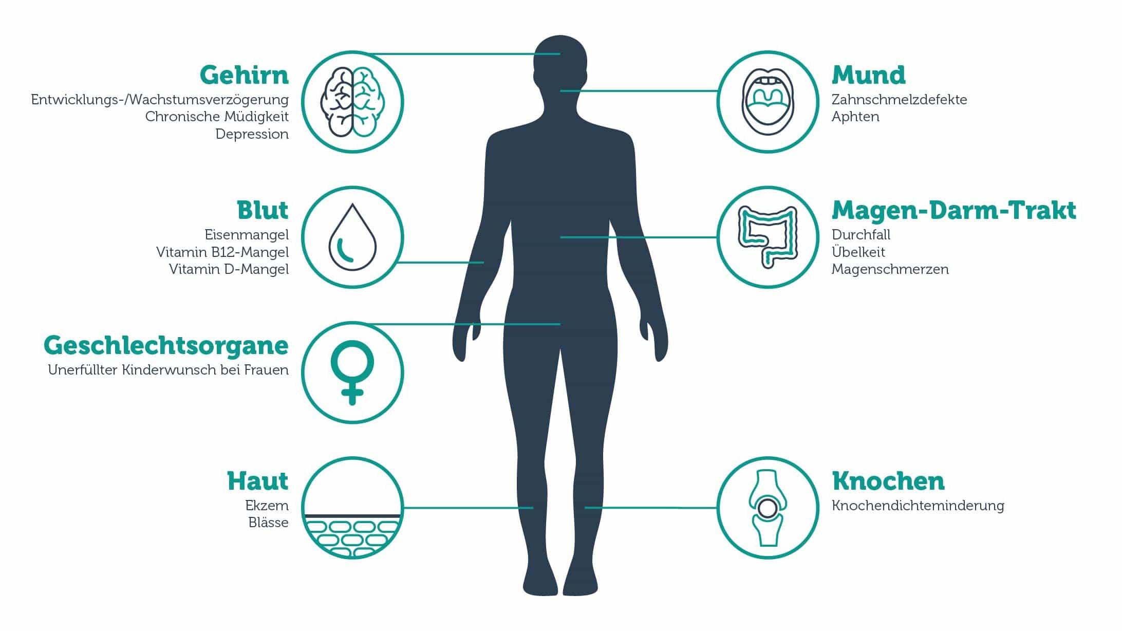 Grafik, die zeigt, welche Krankheiten Zöliakie auslösen kann.