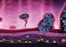Illustration der Entwicklung von Darmkrebs