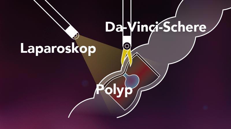 Entfernung eines Polyps mit der Da-Vinci-Schere