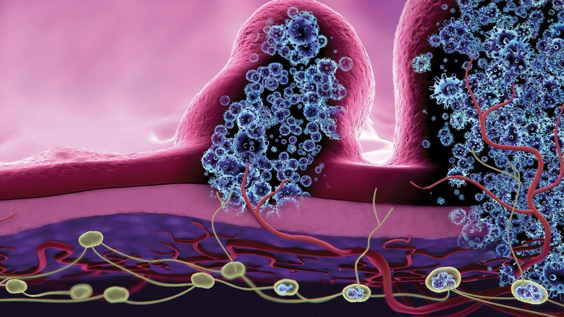 Illustration Entwicklung von Dickdarmkrebs